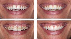 verticalizacao-dente