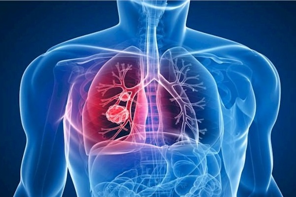 tuberculose 2